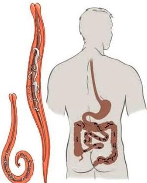 как избавиться от аскаридов и их личинок в домашних условиях