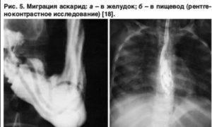 аскариды симптомы у человека аскаридоз