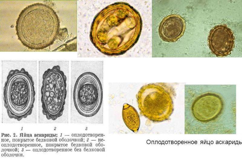 яйцо аскариды под микроскопом фото