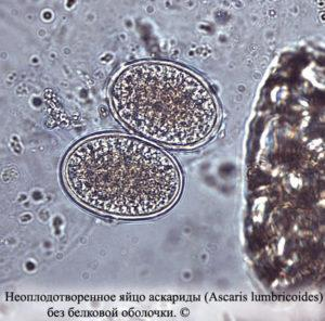личинки аскарид развиваются в