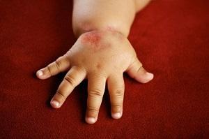 аскаридоз у детей лечение профилактика диагностика