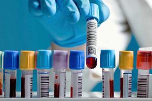 Аналіз на ентеробіоз: де здати дитині аналіз, дитяча поликлинника » журнал здоров'я iHealth 1