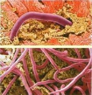 гемотест анализ на энтеробиоз у взрослого кровь