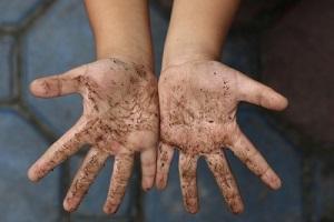 глисты аскариды симптомы у детей и лечение