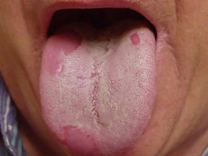 хламидиоз в горле симптомы