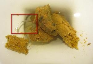 энтеробиоз острицы в попе