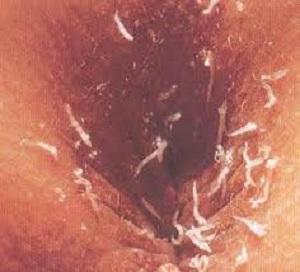 энтеробиоз у взрослых лечение