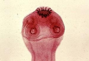 солитер признаки паразита у человека