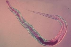 мазок на энтеробиоз у взрослых