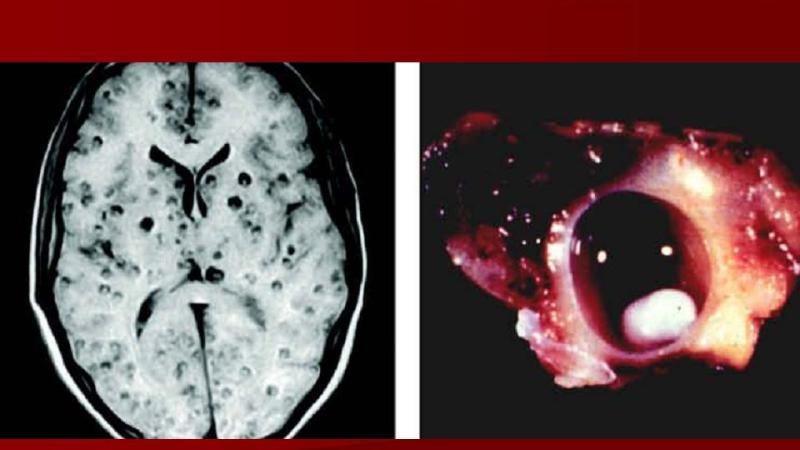 цистицеркоз головного мозга симптомы