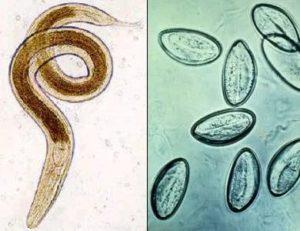 Ентеробіоз (гострики): симптоми у дорослих, ознаки зараження у людини » журнал здоров'я iHealth 3