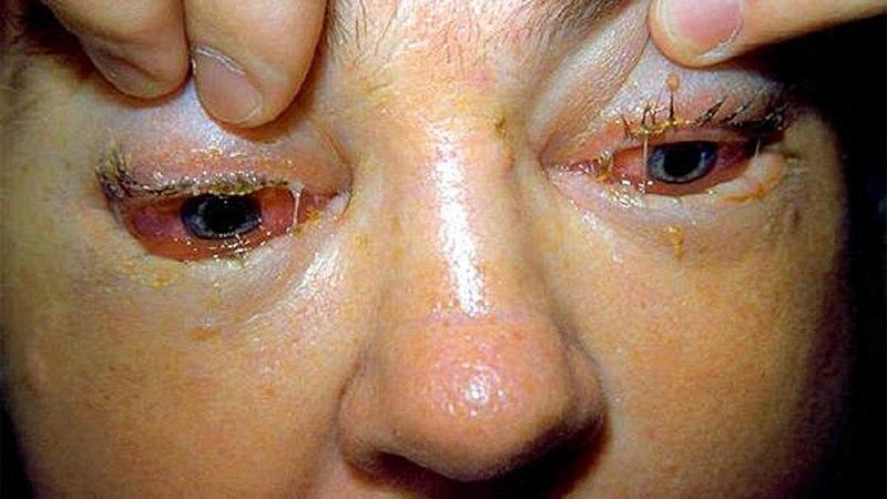трихинеллез симптомы у человека фото