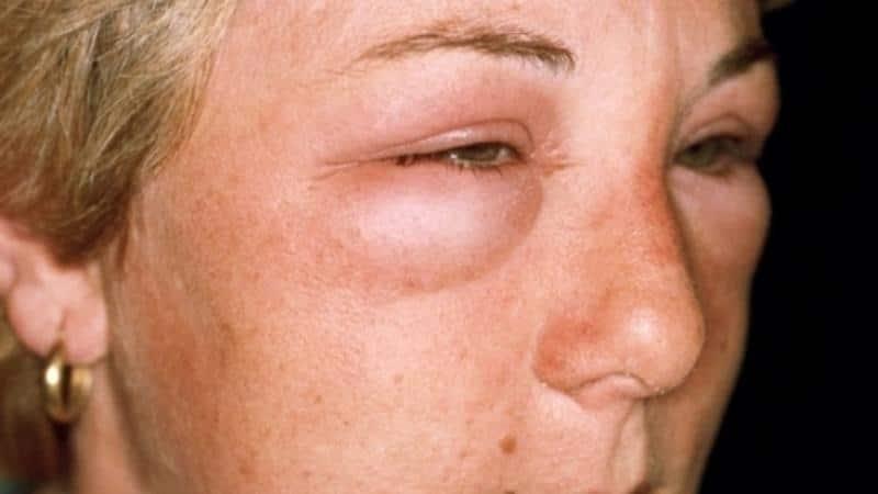трихинеллы симптомы у человека