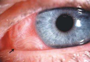 Глист солітер: симптоми у людини, ознаки в організмі, як визначити і виявити » журнал здоров'я iHealth 3