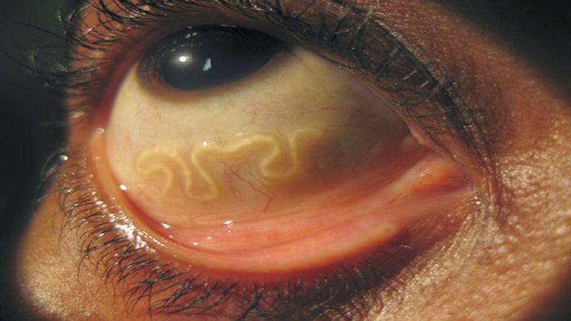 свиной глаз