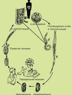острицы инкубационный период
