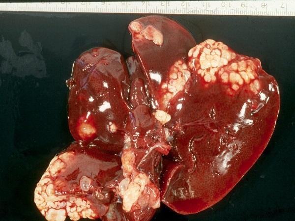 болезнь эхинококкоз