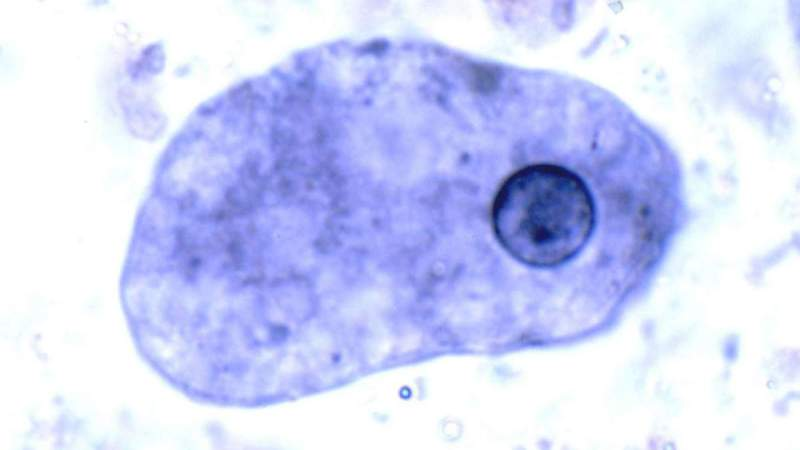дизентерийная амеба фото