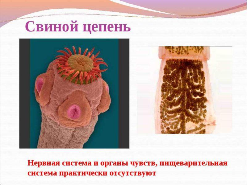 ленточные черви у человека симптомы и лечение