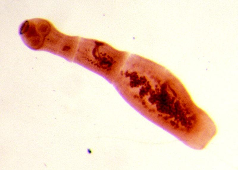 ленточные черви у человека фото