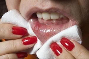 хламидии во рту симптомы