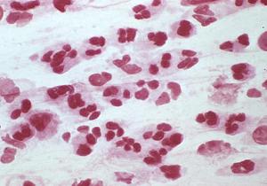хламидийная инфекция у женщин лечение