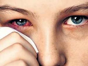 хламидиоз глаз симптомы фото