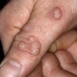хламидиоз симптомы у мужчин