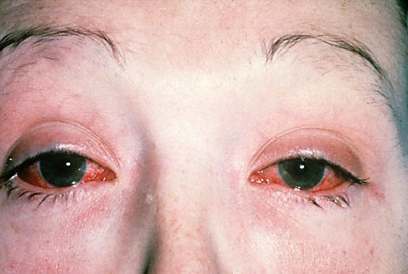 Хламидиоз у женщин: что это такое, фото симптомы и признаки инфекции
