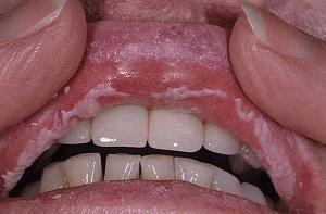 хламидиоз у мужчин лечение и симптомы