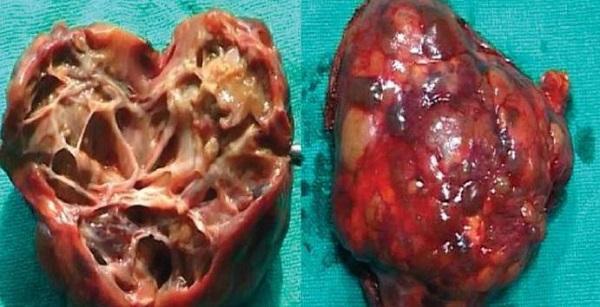 Ехінококоз симптоми у людини: ехінокок фото захворювання » журнал здоров'я iHealth 3