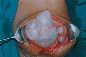 эхинококкоз симптомы у человека