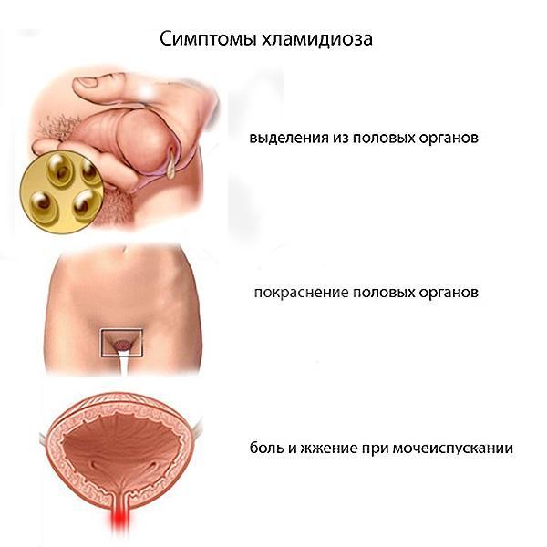 лечение хламидиоза доксициклином