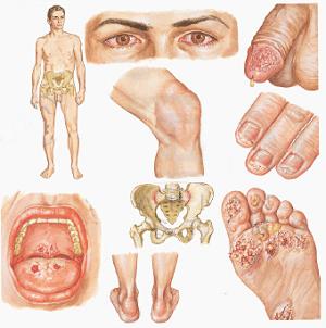 лечение хламидиоза у мужчин лечение