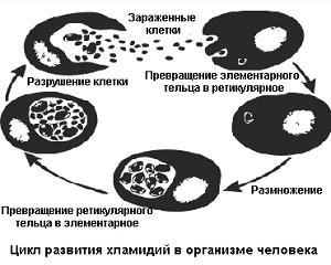 лечение хламидиоза у женщин препараты шема отзывы