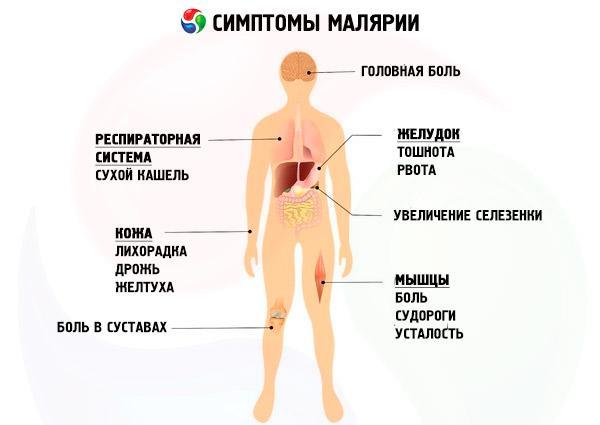малярия симптомы