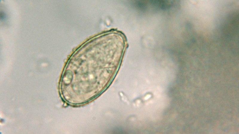 Опісторхоз: фото паразита, як виглядають опісторхи у людини » журнал здоров'я iHealth