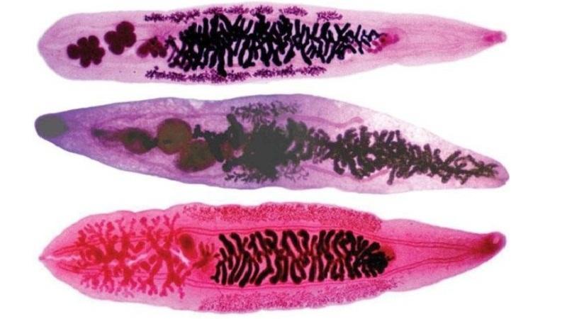 Описторхоз: что это такое, паразиты описторхисы у человека