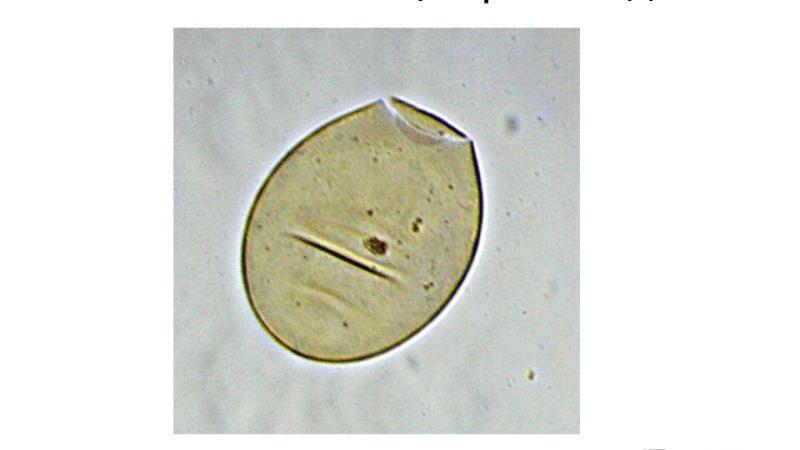 печеночные черви