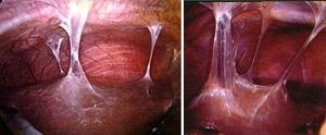 поражение суставов при хламидийной инфекции