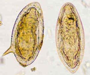 шистосома гематобиум