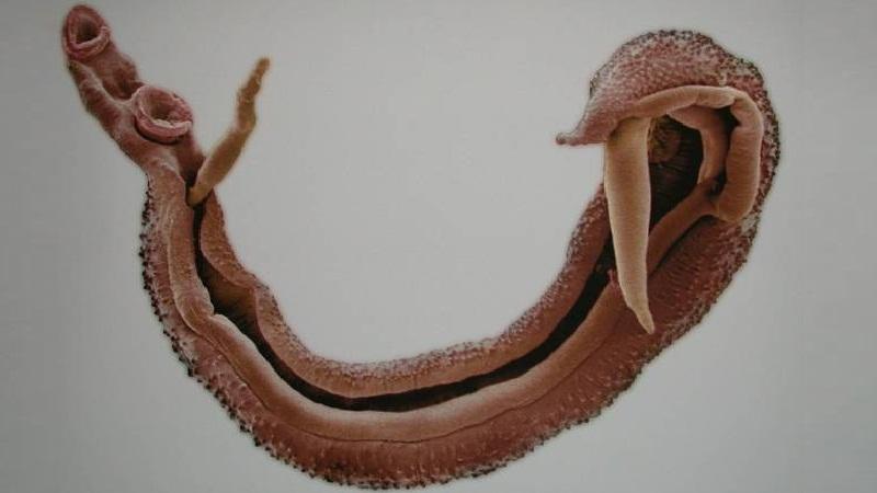 что это такое шистосомоз