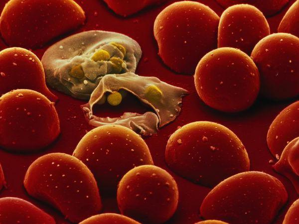 симптомы малярийный плазмодий