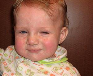 признаки токсоплазмоз у ребенка лечение