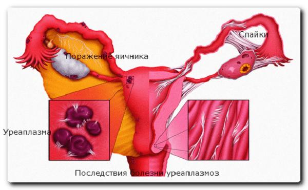 лечение микоплазма схема лечения