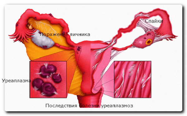 симптомы уреаплазма уреалитикум у женщин
