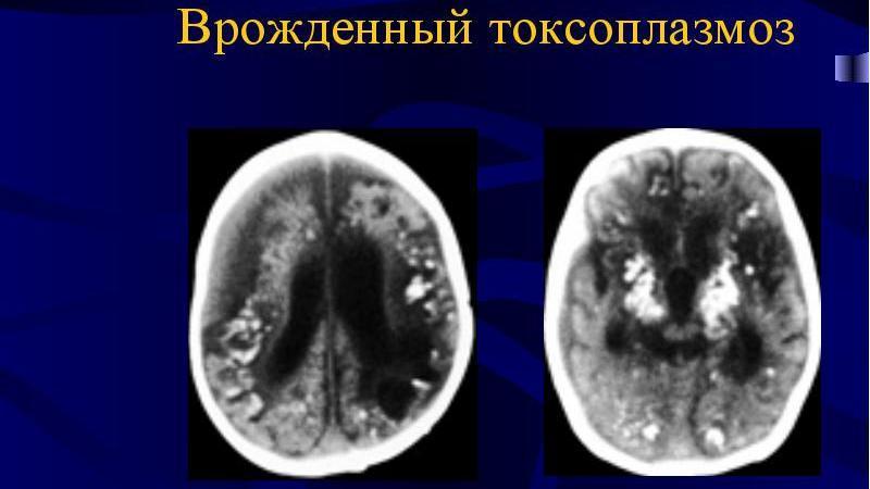 токсоплазмоз мозга