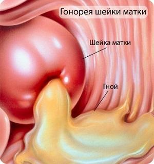урогенитальная хламидийная инфекция у мужчин
