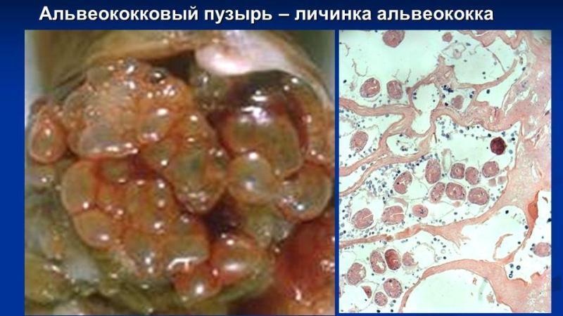 Альвеококоз: фото паразита, захворювання у людини альвеококк » журнал здоров'я iHealth 1