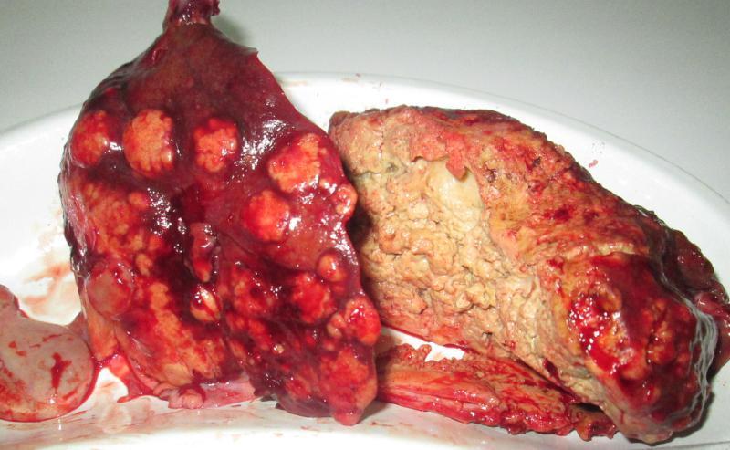 Альвеококоз: фото паразита, захворювання у людини альвеококк » журнал здоров'я iHealth 2